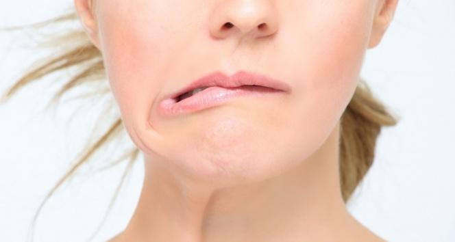 Ani ısı değişimi yüz felcine neden olabiliyor